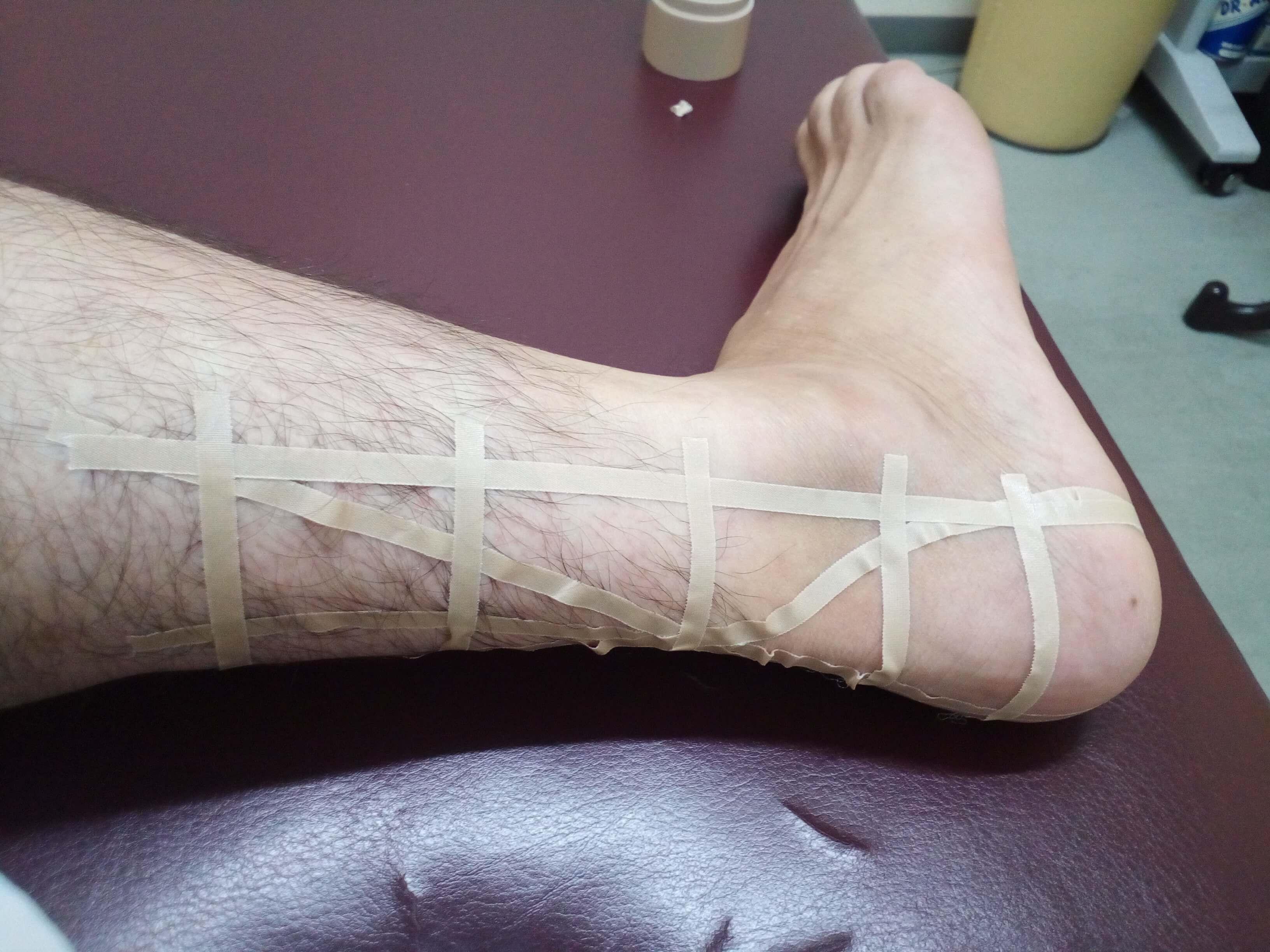 足関節捻挫、アキレス腱炎のテーピング