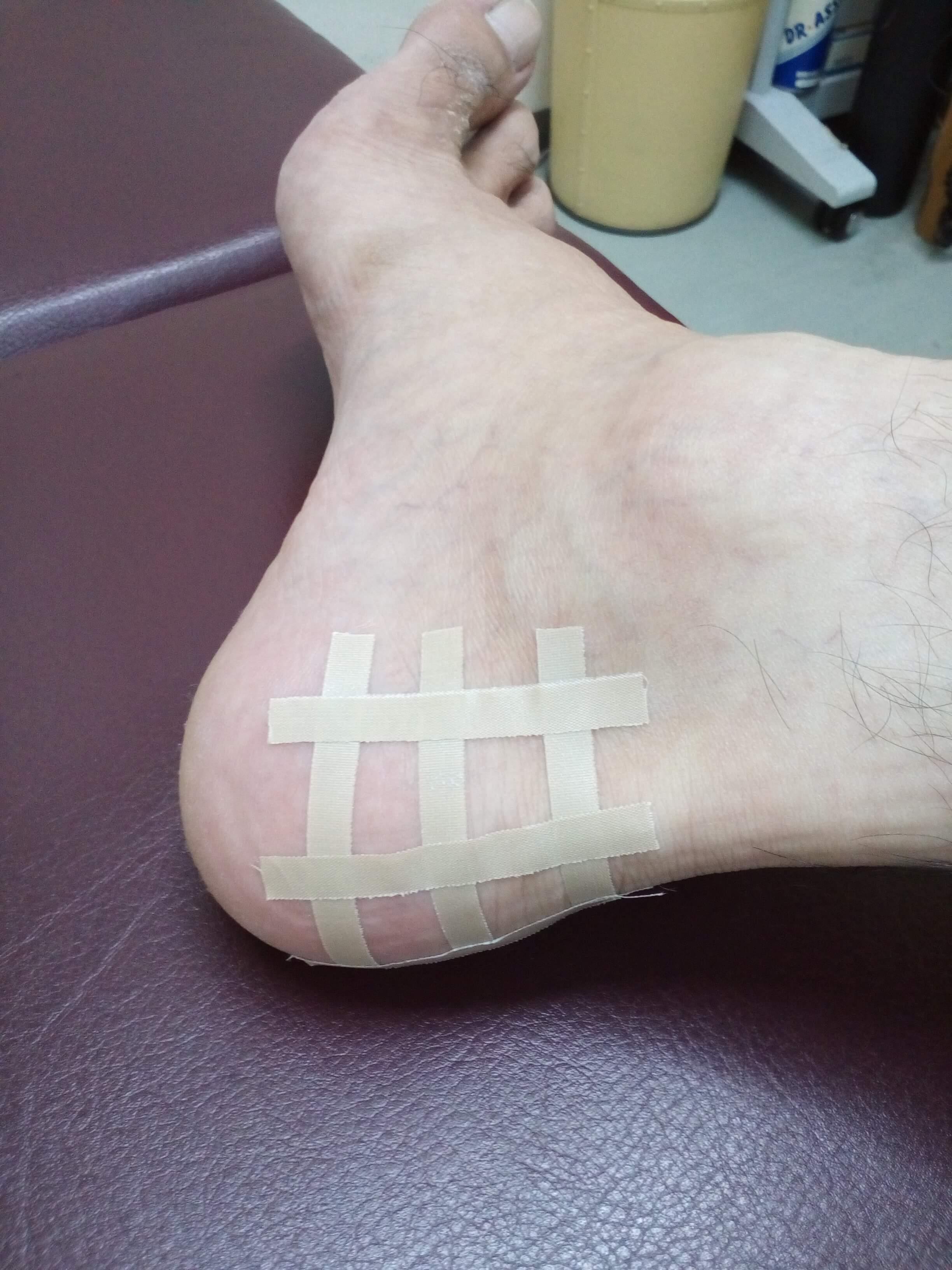 アキレス腱付着部の痛みに対するテーピング法です。