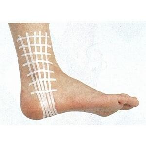 足首の外側の捻挫のテーピング